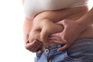 Cellulit tłuszczowy
