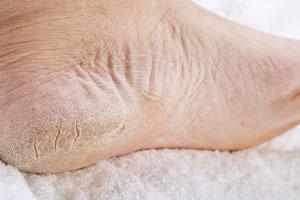 Przesuszona skóra stóp