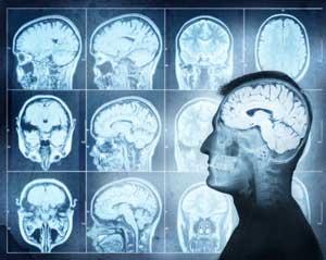 Zmiany w mózgu